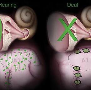 """Глухие люди способны развить """"супер-зрение"""""""