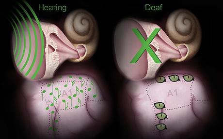 deaf_1736203c